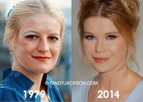 cindy_jackson_before_and_after