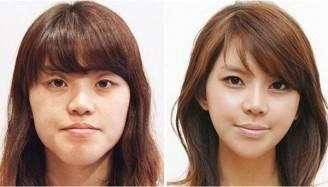 prima e dopo 3