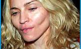 Madonna-Plastic-Surgery-before