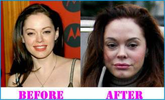 Rose-McGowan-Plastic-Surgery-before-and-after