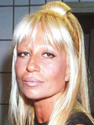 Donatella Versace Before After I Danni Della Chirurgia