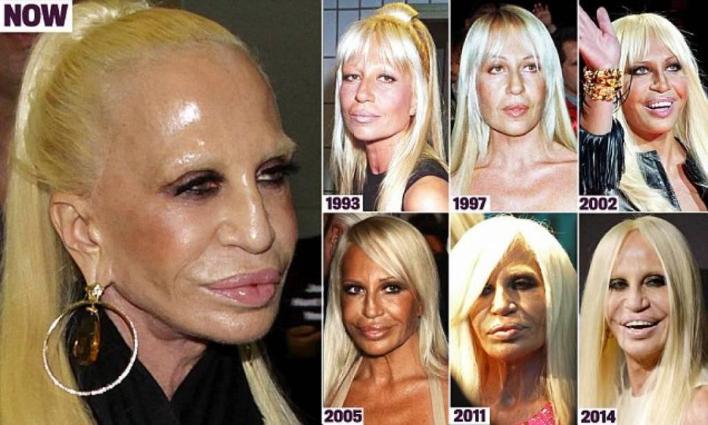 Donatella Versace before-after  pi  249  di 20 foto che raccontano il suo    Donatella Versace Boyfriend