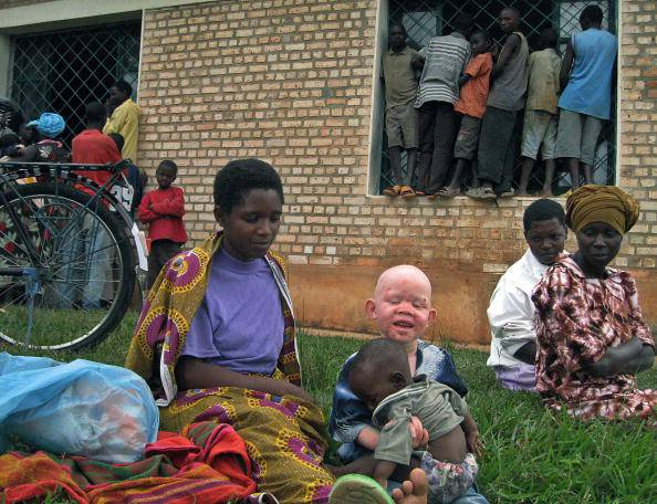 A Burundian woman with an albino child w