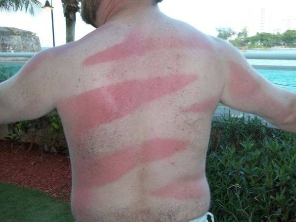 sunburn-art-7