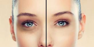 come-eliminare-le-occhiaie
