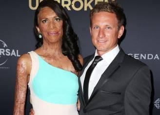Turia Pitt e Michael Hoskin (Brendon Thorne/Getty Images)