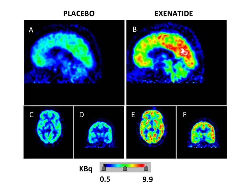 immagine effetto exenatide cervello