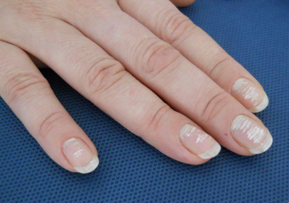 Cosa sono veramente le macchie bianche sulle unghie - Cosa sono le finestre pop up ...