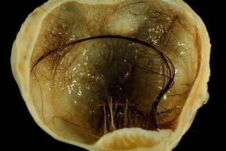 piccolo-cervello-tumore-ovaia-sedicenne-giappone-orig_main