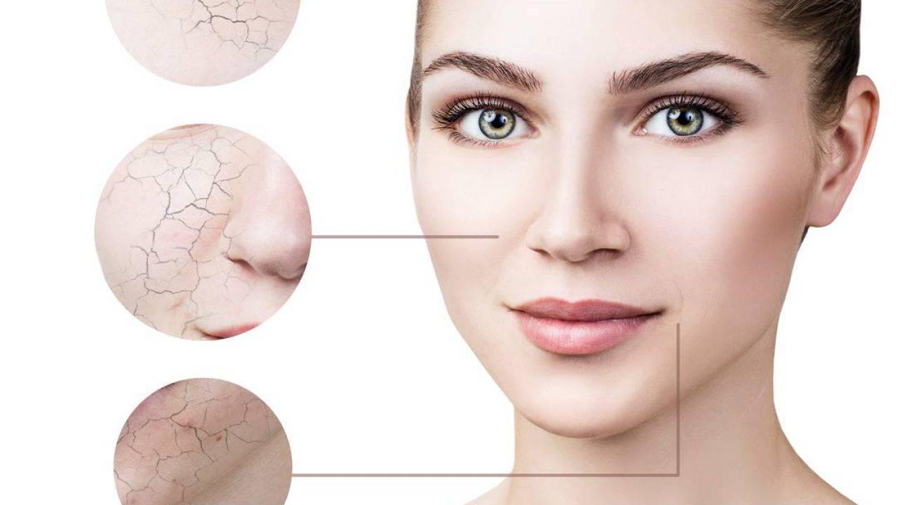 Rosa Secca Cosa Fare pelle secca viso: cause, rimedi naturali, alimentazione