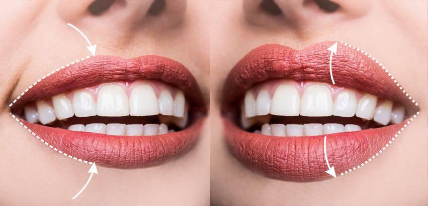 trucco labbra sottili
