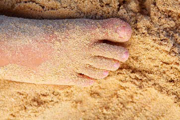 pelle secca gambe