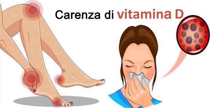 8 segni della carenza di vitamina D