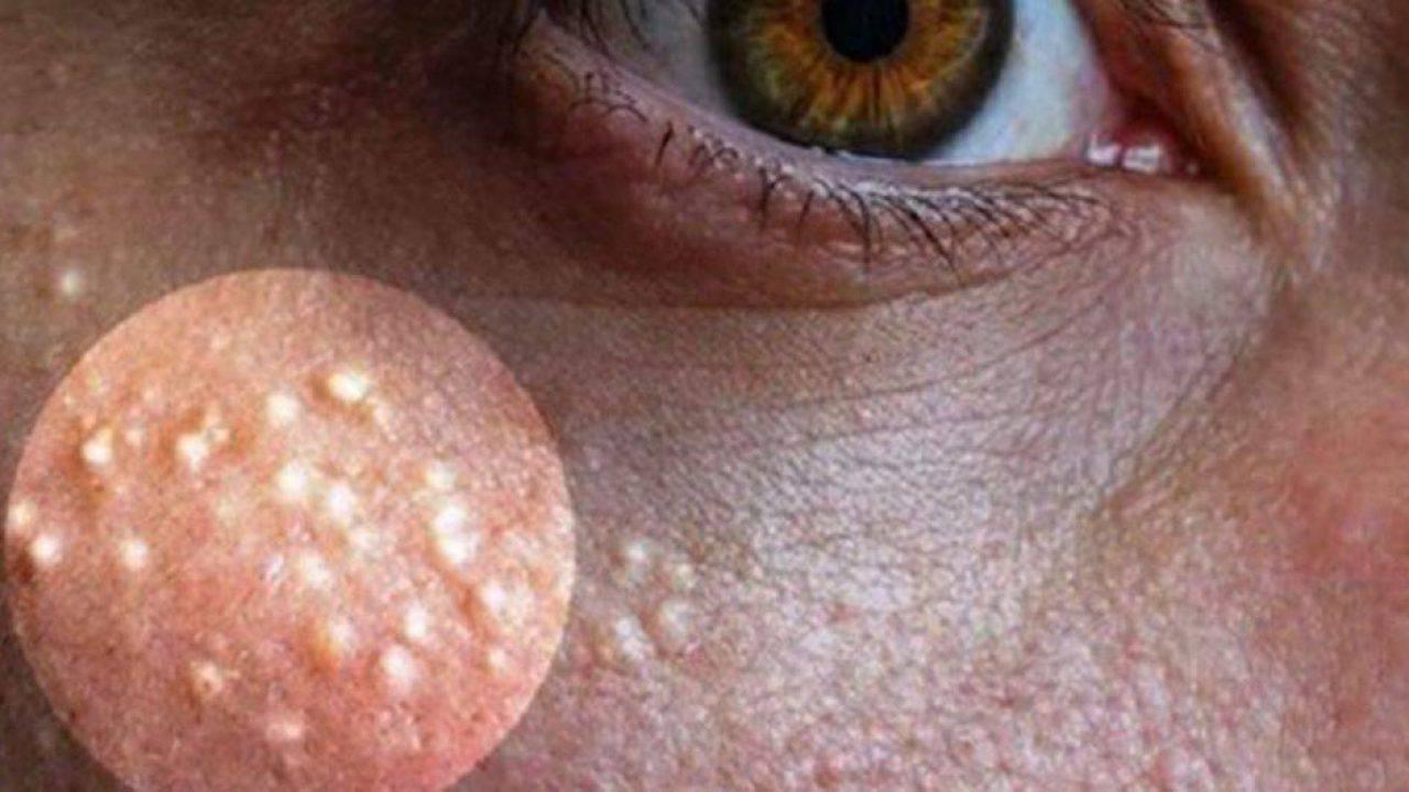 Grani di miglio o acne miliare: come combatterla con rimedi naturali
