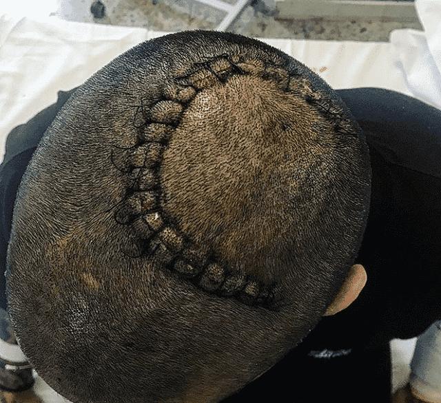 francesco chiofalo cicatrice operazione al cervello