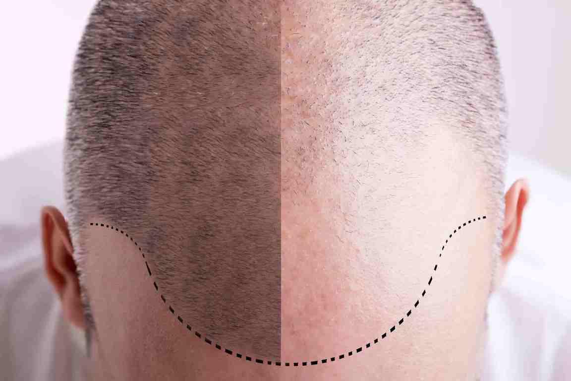 Polvere di cheratina: una soluzione efficace contro l'alopecia