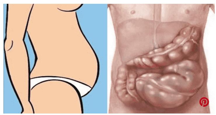come perdere peso a causa di cambiamenti ormonali
