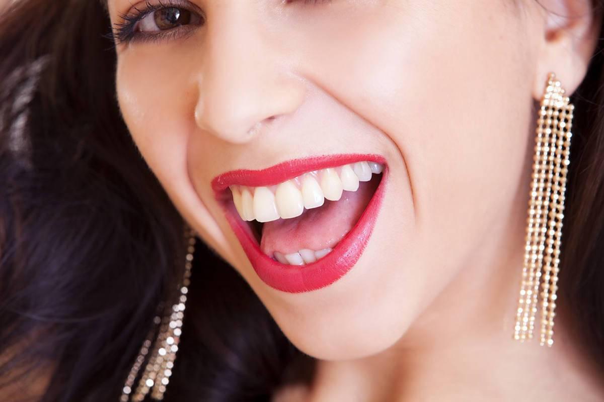 rossetto sui denti
