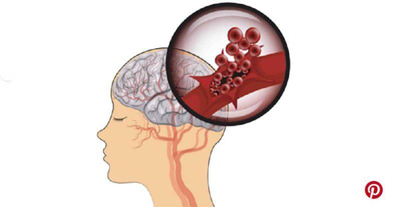 Ictus, 6 sintomi premonitori che indicano potresti averne presto uno