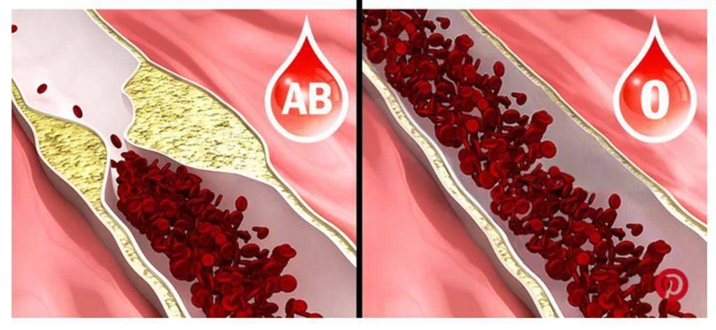 Se hai il gruppo sanguigno 0 devi sapere queste 6 cose