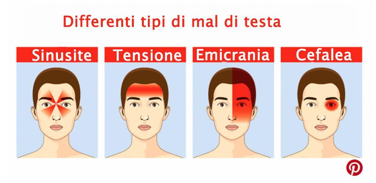 Mal di testa, i 4 mal di testa più comuni e come trattarli