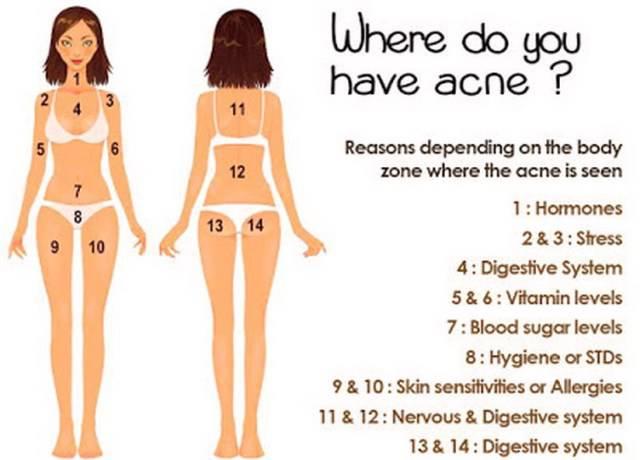 acne e psicologia