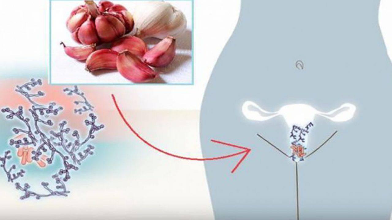cosa aiuterà a eliminare uninfezione da lievito