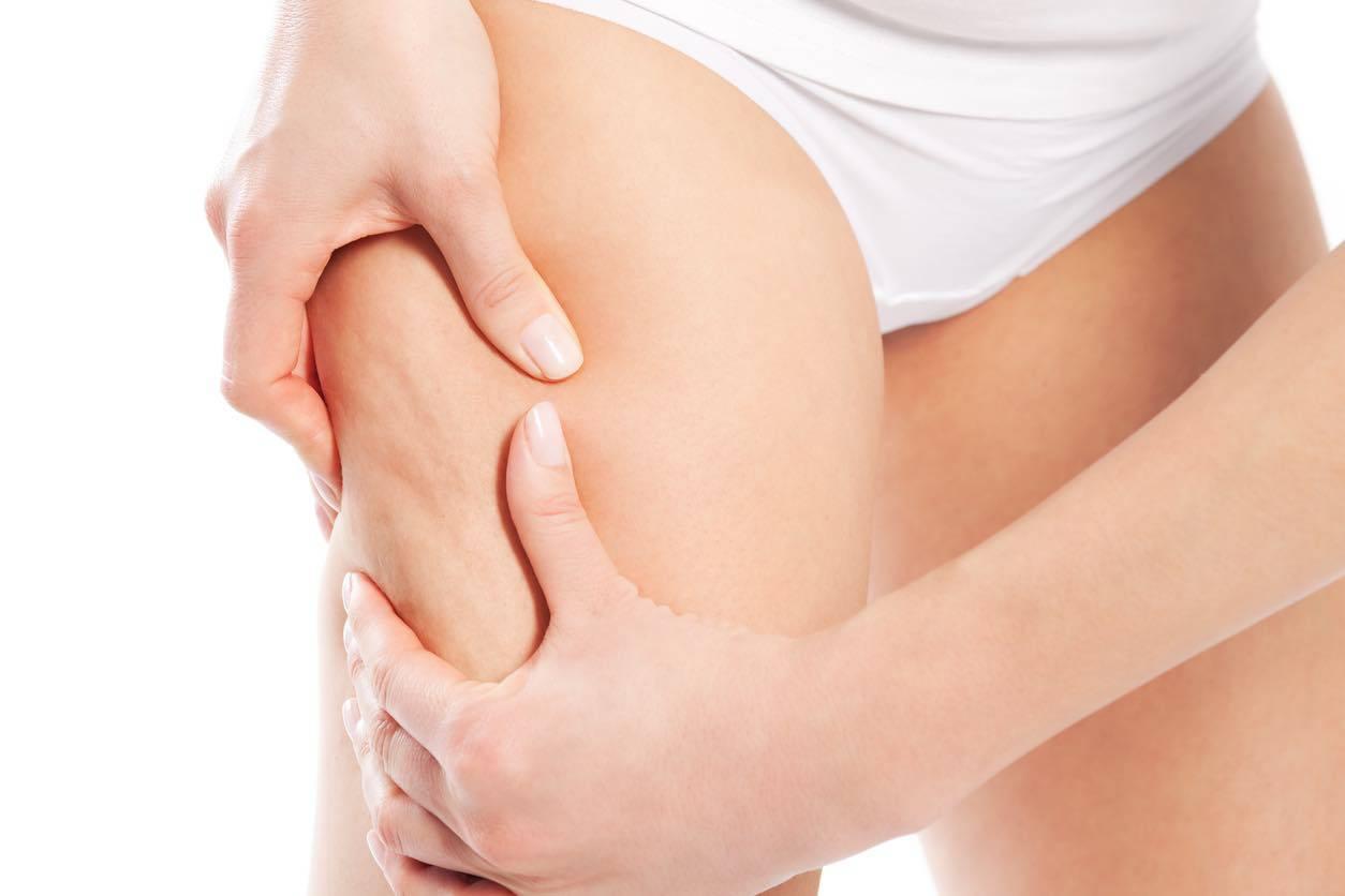 Ritenzione idrica: cause e come sgonfiare piedi e gambe in modo naturale