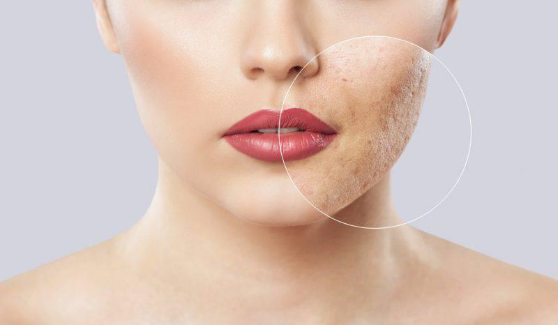 Come trattare le pelle acneica al sole