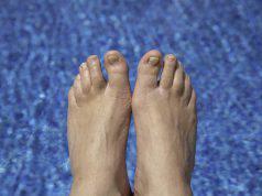 Micosi dell'unghia: i 6 migliori rimedi casalinghi