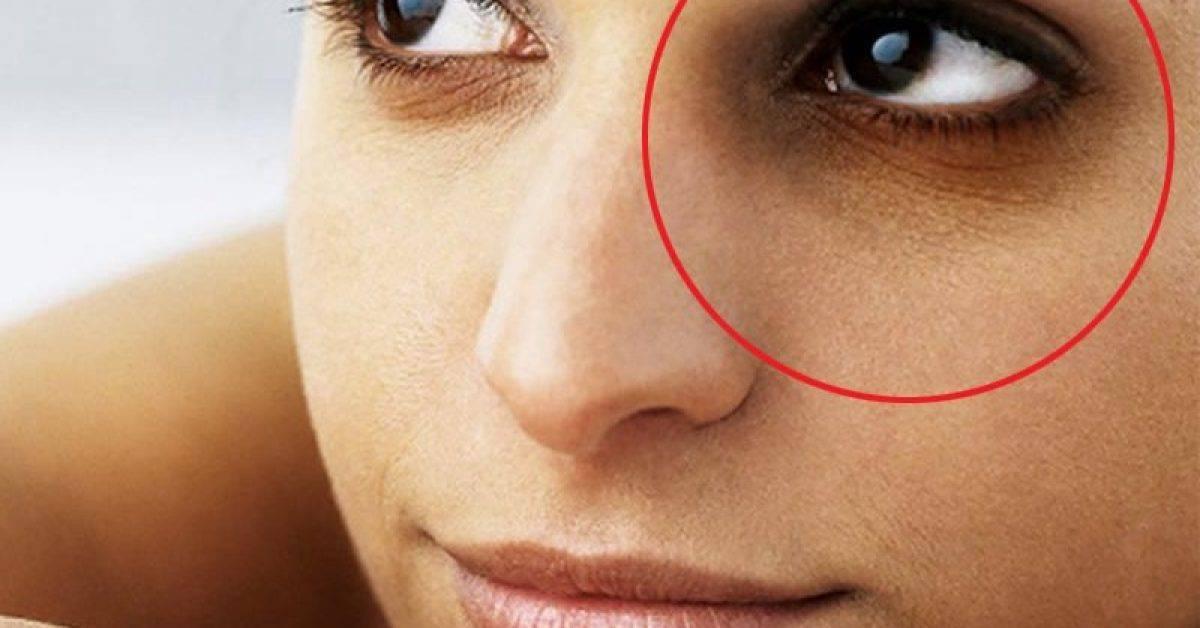 7 consigli naturali per ridurre le occhiaie nere in 2 giorni