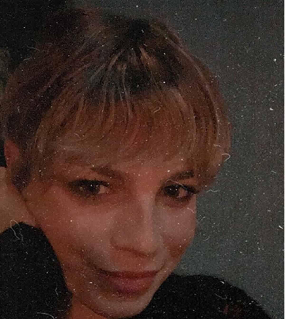 emma marrone prima foto dopo l'operazione
