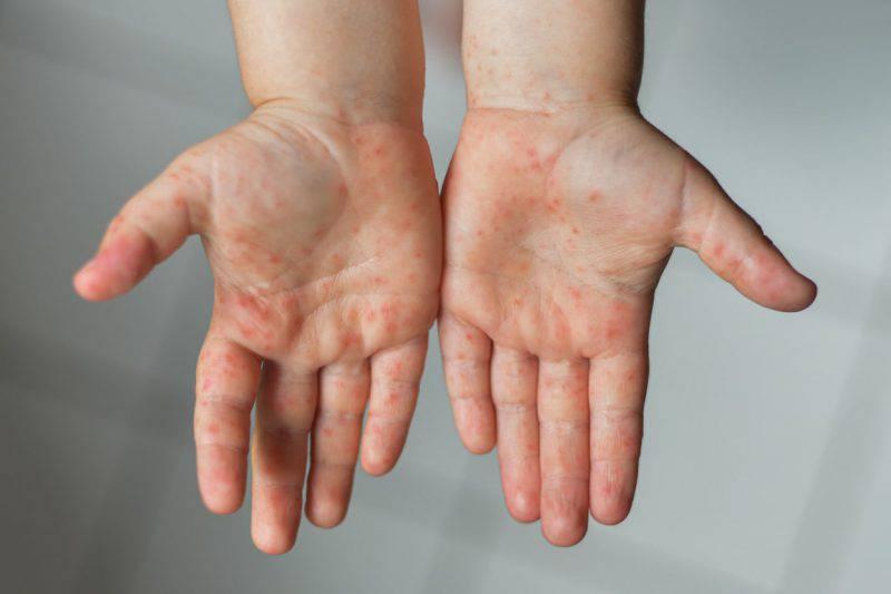 puntini rossi solo sulle mani