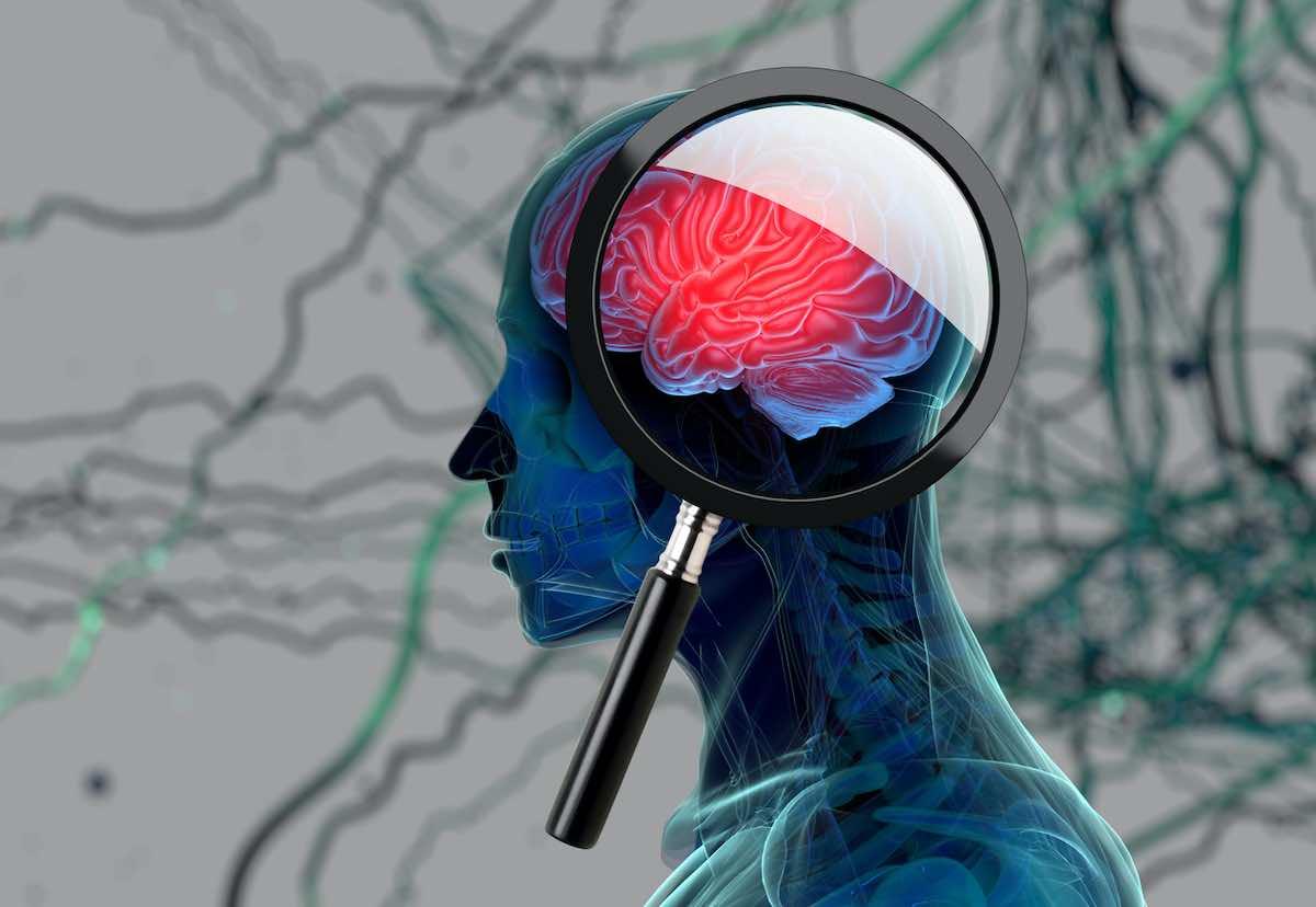 Demenza senile, uno studio della Columbia University spiega come prevenirla (Istock)