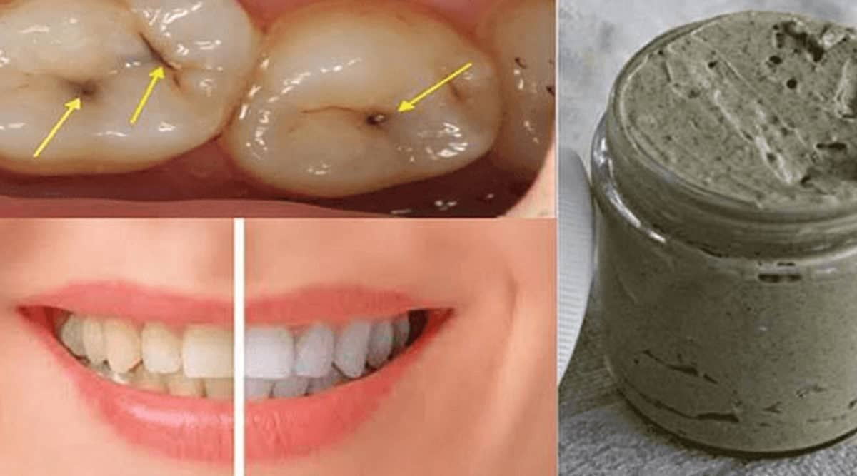 Dentifricio fatto in casa che sbianca i denti e cura la carie