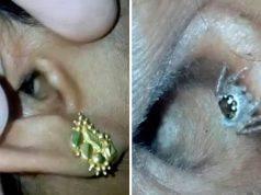 Soffriva di ricorrenti mal di testa | ecco il ragno che viveva nel suo orecchio