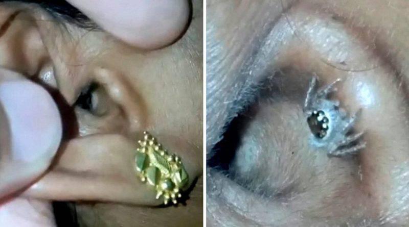 Soffriva di ricorrenti mal di testa   ecco il ragno che viveva nel suo orecchio