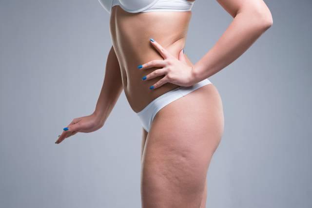 6 oli essenziali contro la cellulite