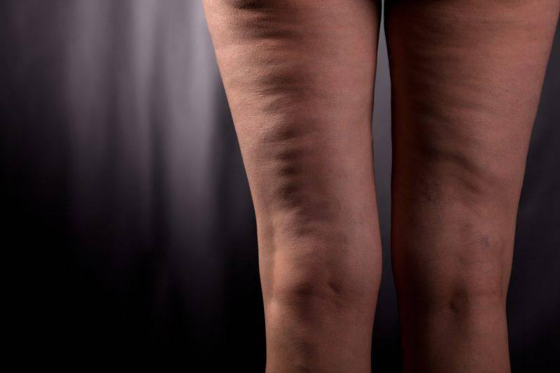 Cellulite e gambe