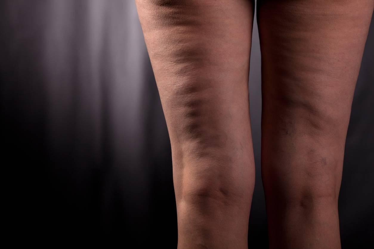 5 cose da fare se hai la cellulite