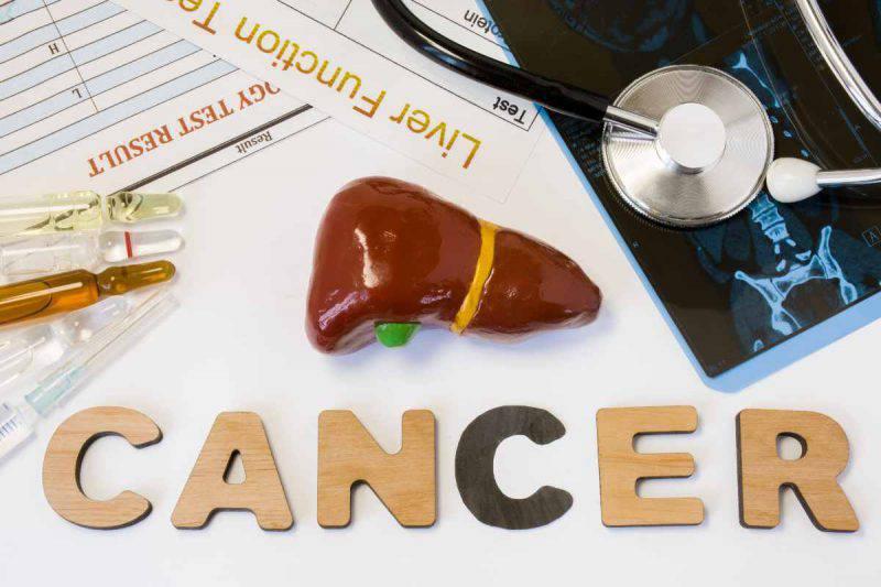cancro al fegato