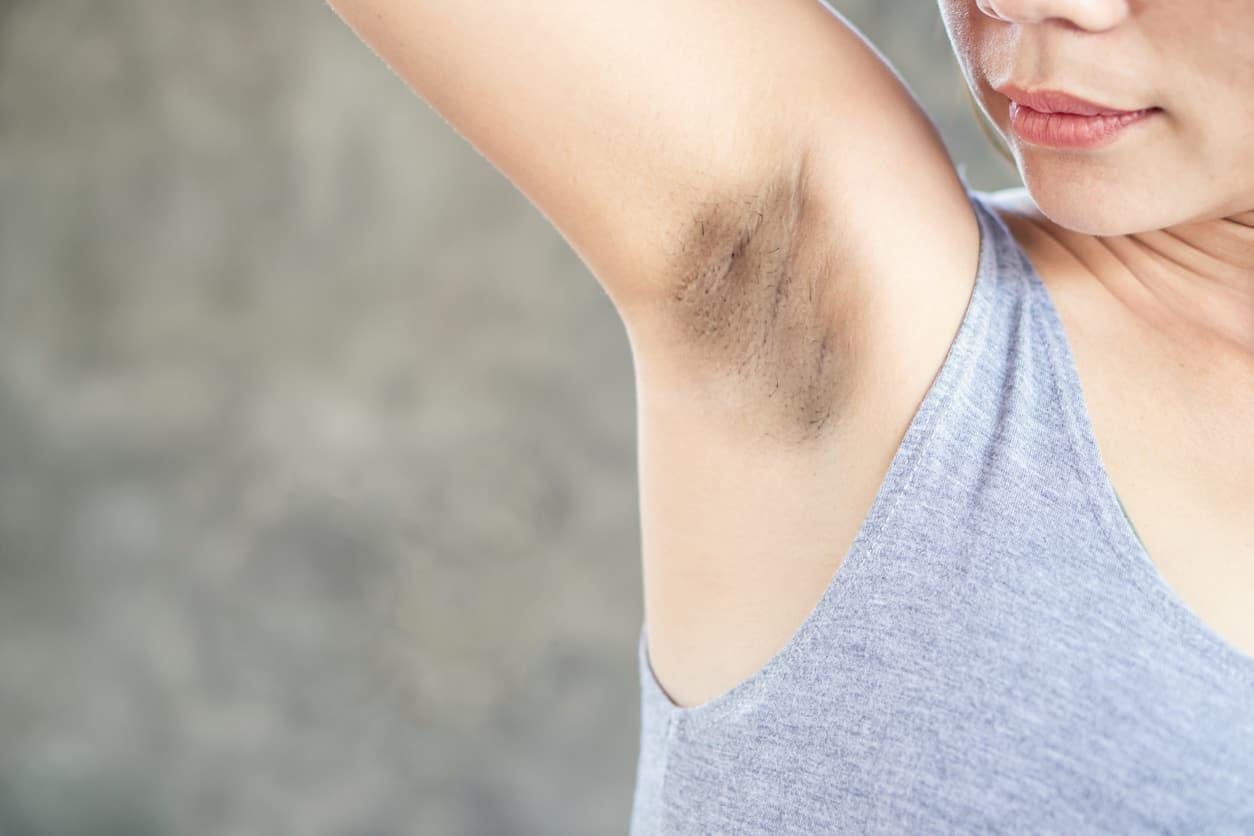 Ecco cosa dovresti sapere se hai le ascelle scure