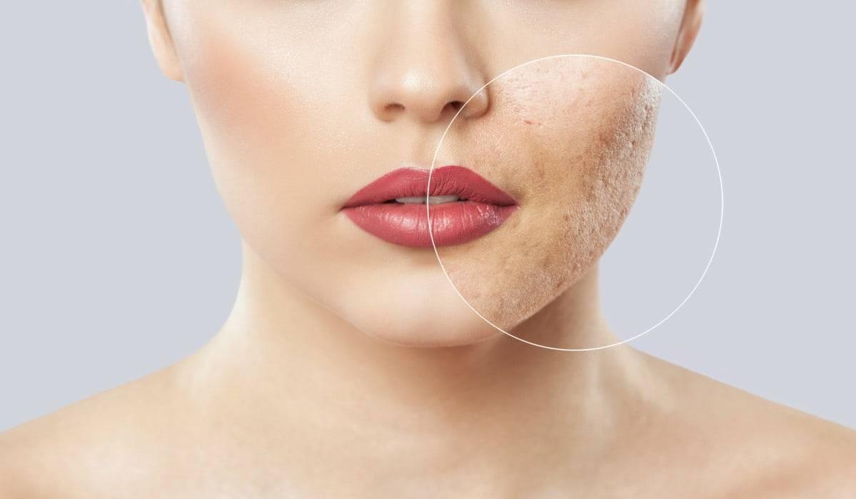 5 trattamenti da preparare in casa se hai la pelle grassa