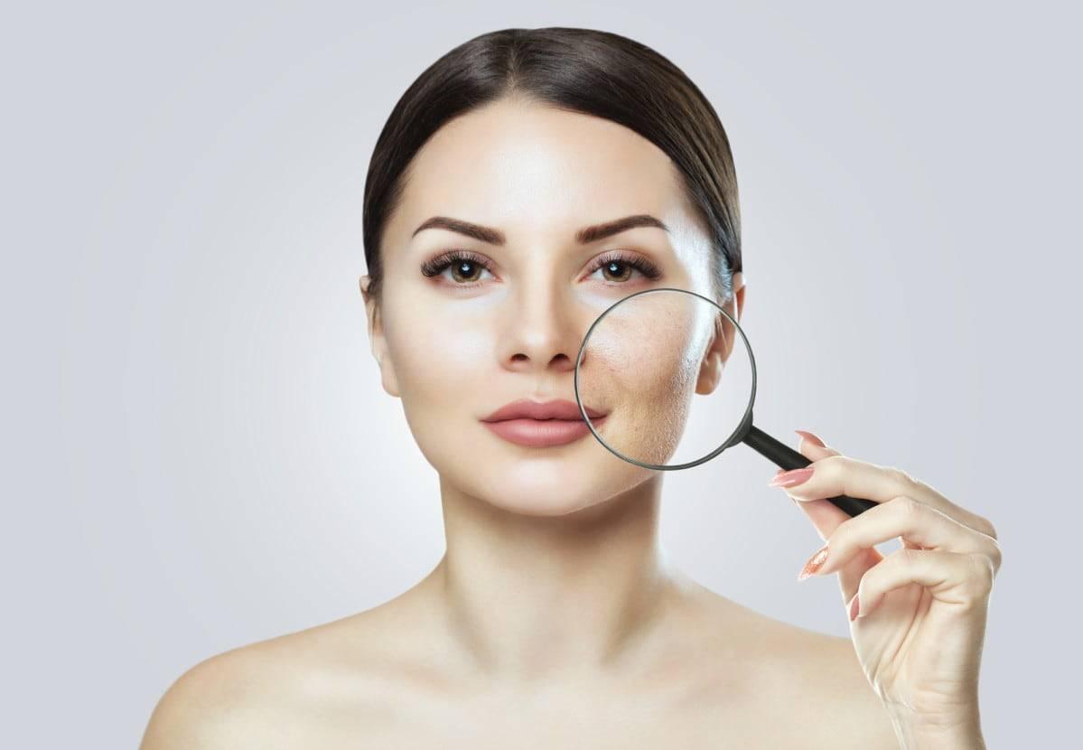 5 trattamenti da fare in casa se hai la pelle grassa