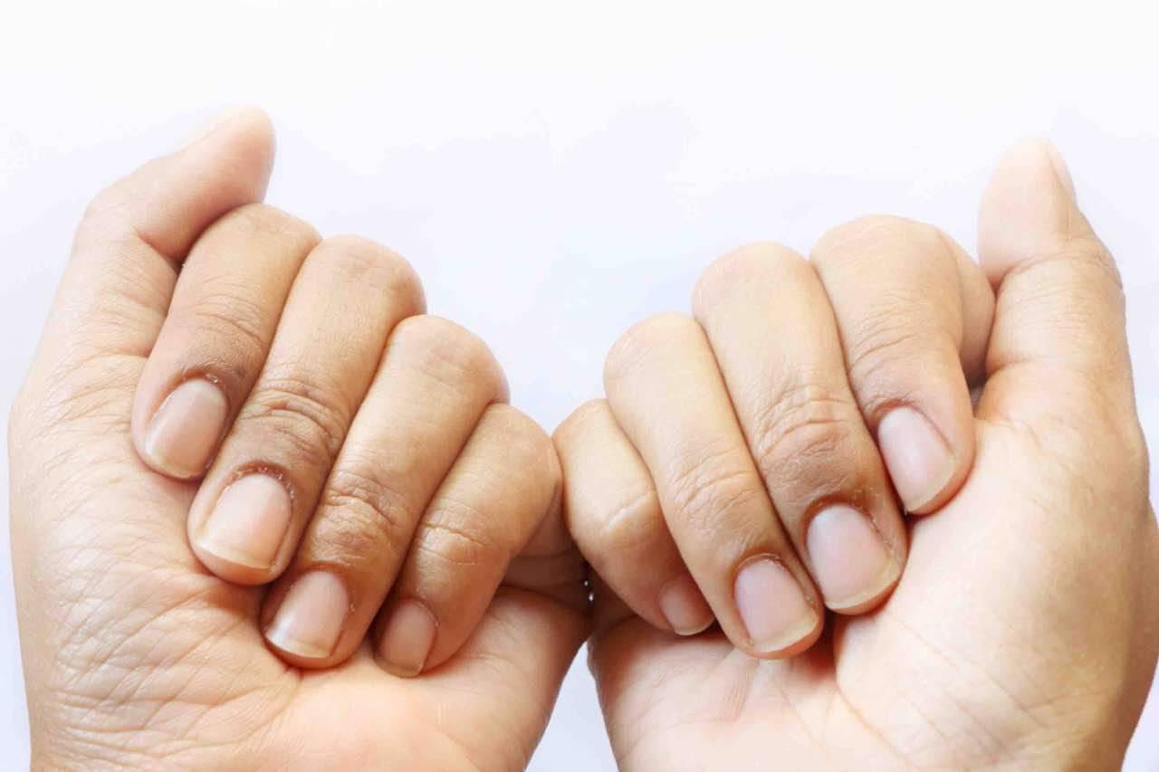 unghie macchiate