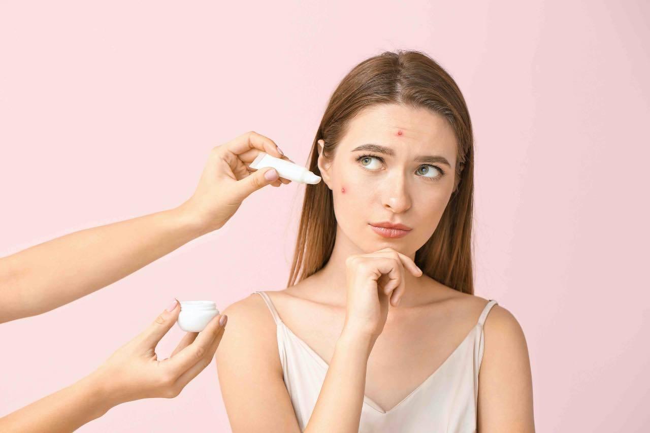 rimedi acne rebound