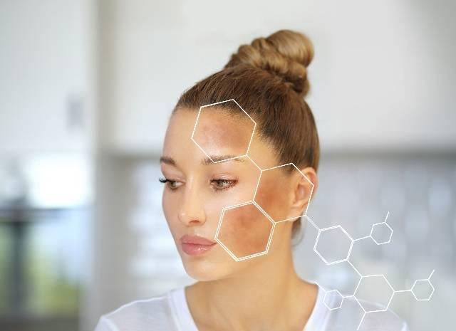 Melasma: come proteggersi dalle macchie della pelle