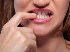 Rimedi per non mangiare le unghie