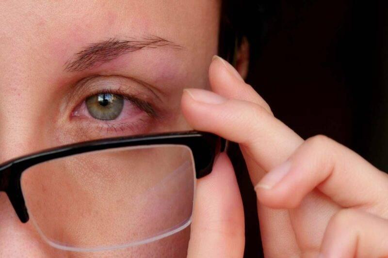 Occhi rossi: rimedi naturali