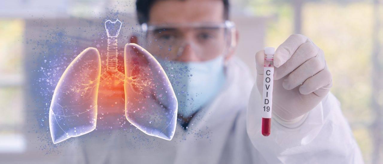 idrossicolesterolo molecola blocca covid-19
